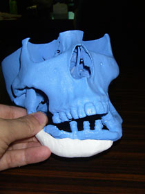 Custom artificial bone made on 3D inkjet printer --