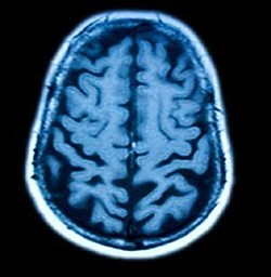 Brain --